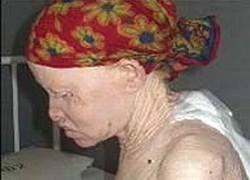 В Танзании банды убийц охотятся на альбиносов