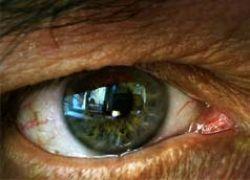 Самый старый глаз в мире продолжает работать
