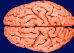Американка оценила пропавший мозг мужа в 4 миллиона долларов