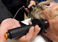Электросудорожная терапия превращает правшей в левшей