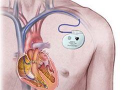 Ученые создали кардиостимулятор, который заряжается от сердца