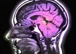 Ученым обратили вспять воздействие ВИЧ на мозг