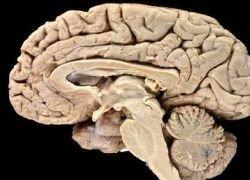 Предложена альтернативная теория строения мозга