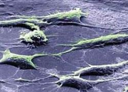 Стволовые клетки могут возвращать слух и зрение