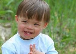 Почему рождается все больше детей с синдромом Дауна?
