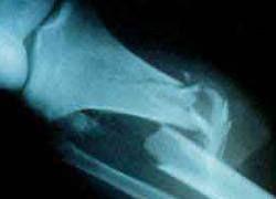 Рентгенологов заставят посмотреть в глаза пациентам