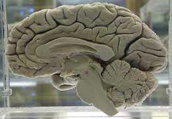 Алкоголь уже в умеренных дозах способствует усыханию мозга