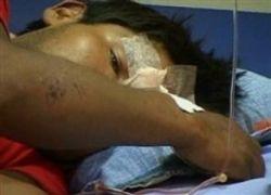 В Боливии от лихорадки денге скончались 19 человек