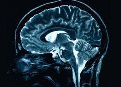 Шизофрению вызывают нарушения связей в мозге