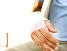 Англичане придумали способ лечения костных переломов