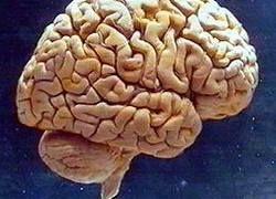 Человеческий мозг не способен восстанавливать нейроны