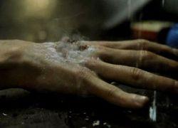 В Чили разработаны новые методы лечения ожогов и ран