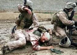 Посттравматический синдром стал бичом военных США