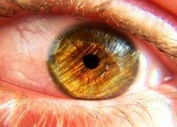 Определить болезни можно по глазам