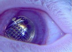 Ученые хотят поместить экран в контактную линзу