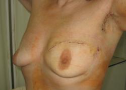 Пять мифов о раке груди