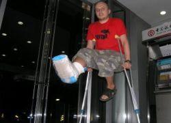Британец прожил 29 лет со сломанной ногой