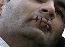 Беженец из Абхазии зашил себе рот и хочет зашить уши