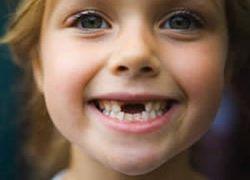 Пломбирование молочных зубов не приносит пользы