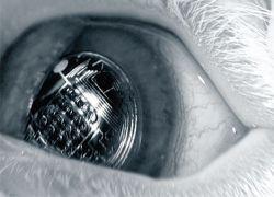 Ученые готовят революцию в производстве контактных линз