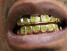 Чем полезны золотые зубы