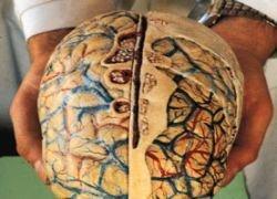 Американка живет с одним полушарием мозга