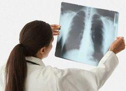 От вирусной пневмонии на Украине умерли 30 человек