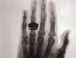 Рентген признан лучшим достижением современности