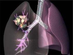 Рак легких будут определять по запаху