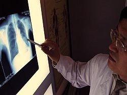 Вакцину от рака легких признали безопасной