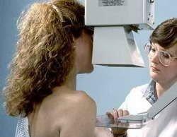 Витамины и препараты кальция уменьшают риск рака груди