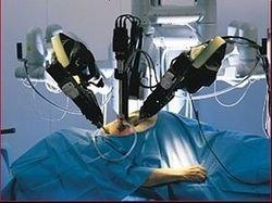 Роботы оперируют на сердце