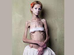 Анорексия - бичом столичной молодежи