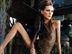 В Австралии борются с анорексичными моделями