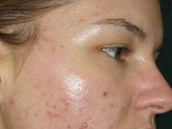 Угревая сыпь на лице как аллергическая