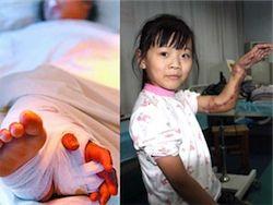 Оторванную руку китайской девочки на время пришили к ноге