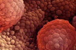 Генетический анализ поможет выявлять рак простаты