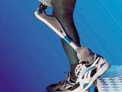 Бионическая нога успешно проходит испытания
