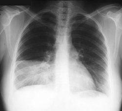 пневмония. воспаление легких.  Просмотров.  23 мая 2011.