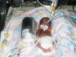 Самый крошечный младенец в мире: полгода спустя (фото)