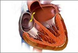 Распространенный порок сердца вылечат естественным путем