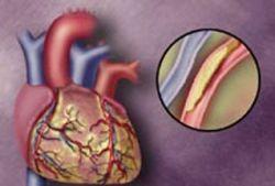 Атеросклероз придется лечить проверенными способами