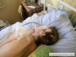 сломала руку знакомая женщина