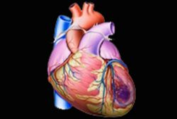Стволовые клетки способны восстановить сердце после инфаркта