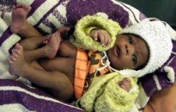 В Замбии родился ребенок с четырьмя ногами
