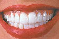 Стоматологи не будут сверлить зубы