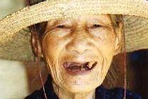 Потеря зубов в старости связана с повышенным риском слабоумия