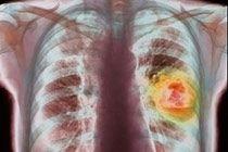 Анализ крови выявляет рак легких на ранних стадиях