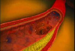 Овощная диета предотвращает возникновение атеросклероза