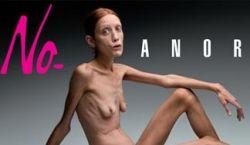 Шокирующая кампания против анорексии: фото голой модели